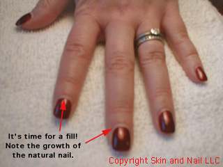 The Left Photo Shows Nail Growth That Must Be Filled On Right Same Nails After A Fill Has Been Done